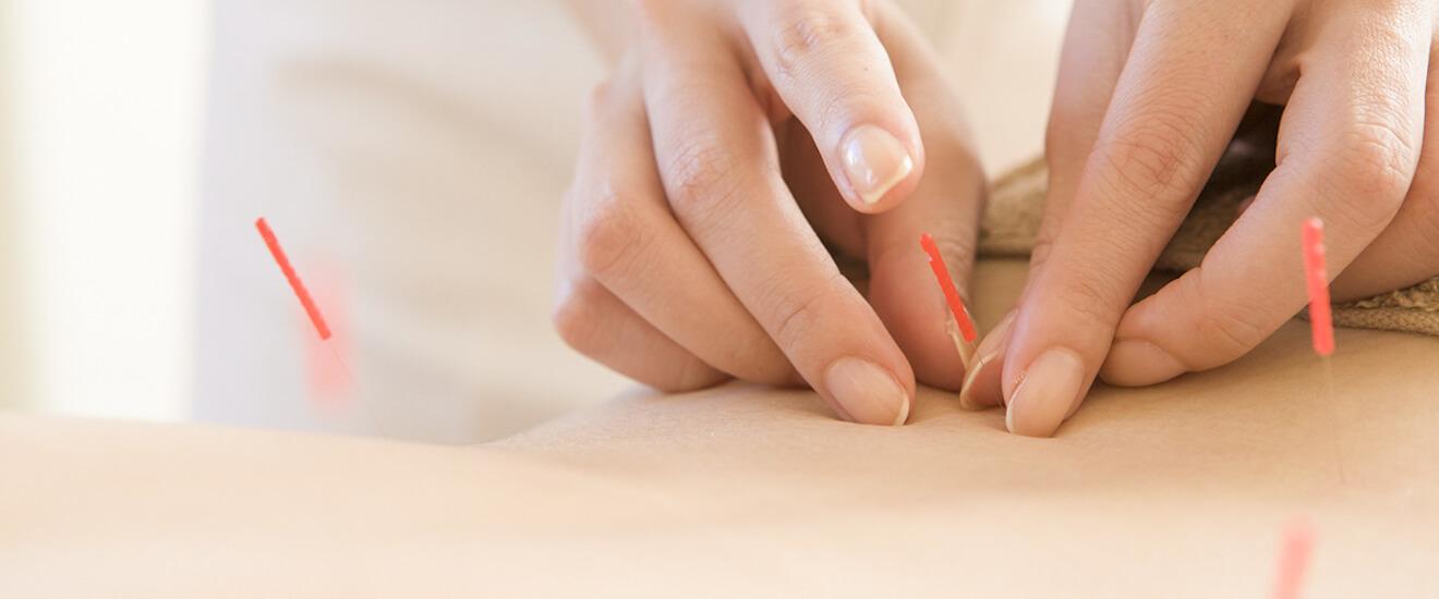akupunktur2048x550